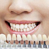 Nejlepší domácí účinné bělení zubů? Peroxidem ne, jedlou sodu chválí recenze