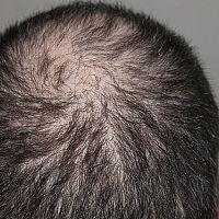 Jak zastavit vypadávání vlasů? Jak tomu zabránit?
