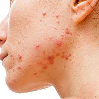 Jak se zbavit akné? Co pomáhá? Přírodní léčba!