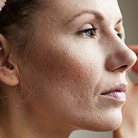 Jizvy po akné – jak se jich zbavit. Krém, laser nebo domácí recepty?