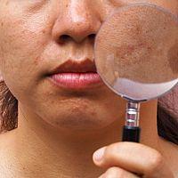 Krémy na pigmentové skvrny na obličeji jako účinná léčba. Pomáhá i citron.