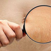 Strie na prsou, bocích a nohách po porodu – jak se jich zbavit? Pomáhají krémy?