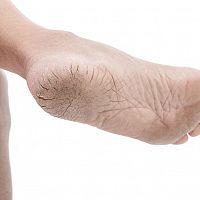 Suché a popraskané paty – příčiny a léčba