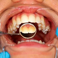 Co na zubní kámen? Pasta, škrabka i dentální párátka
