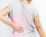 Osteoporóza – prevence a léčba. Rady, jak zvýšit hustotu kostí a doplnit vápník