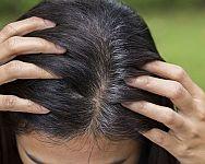 Alpecin, Reparex nebo Nogrey? Který je nejlepší proti šedivění vlasů