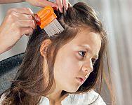 Jak se zbavit vší ve vlasech? Ocet i šampony na rychlé odstranění problému
