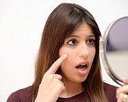 Kruhy pod očima a jejich příčiny. K odstranění krém i domácí recepty
